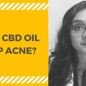 CBD Oil for Acne (CBD Oil for Skin)