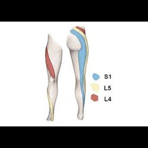 SCIATICA & THE PIRIFORMIS MUSCLE PART 2 and how CBD Assists