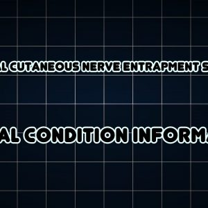 Abdominal cutaneous nerve entrapment syndrome (Medical Condition)
